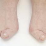 Pedicure Loes Offermans - reumatische voet